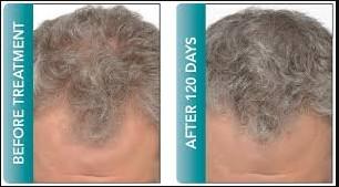 cheveux homme avant-après resultats mesotherapie cheveux