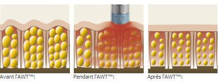 schema explication ondes de choc cellulite