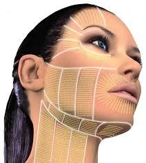 schema zones passage ulthera visage applicateur relachement ovale visage cou