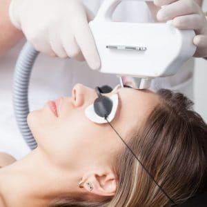 visage lumiere pulsee laser vieillissement taches