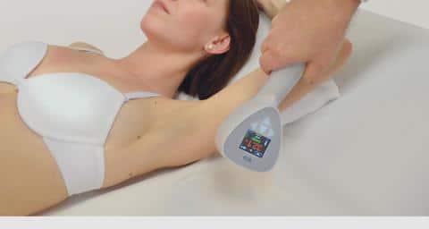exilis peau flasque relachement ultrasons radiofréquence peau flasque relachement des bras