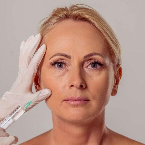 injection acide hyaluronique visage