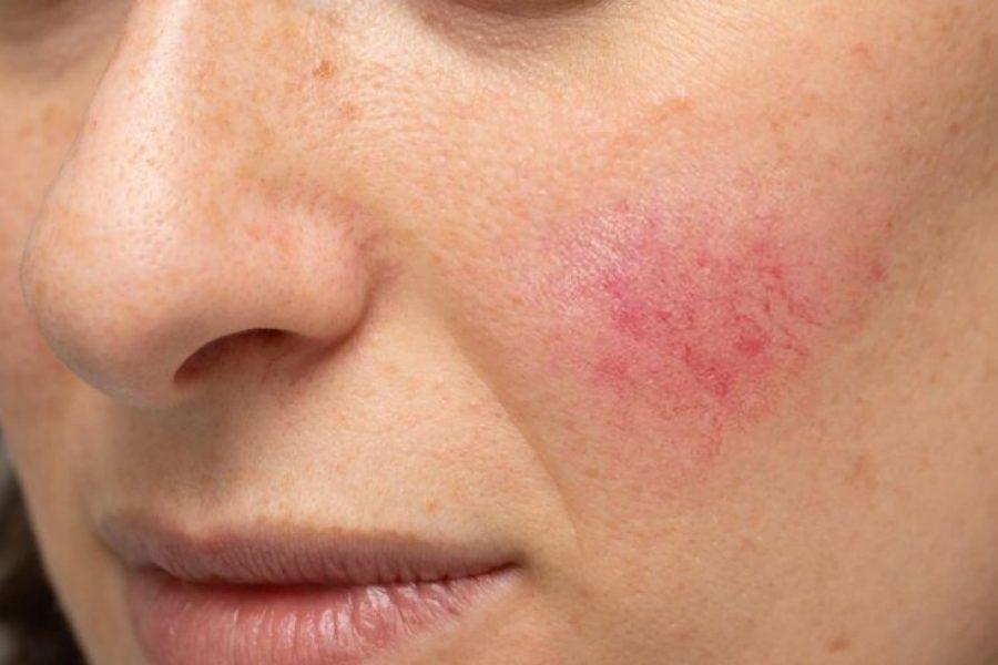 couperose visage femme