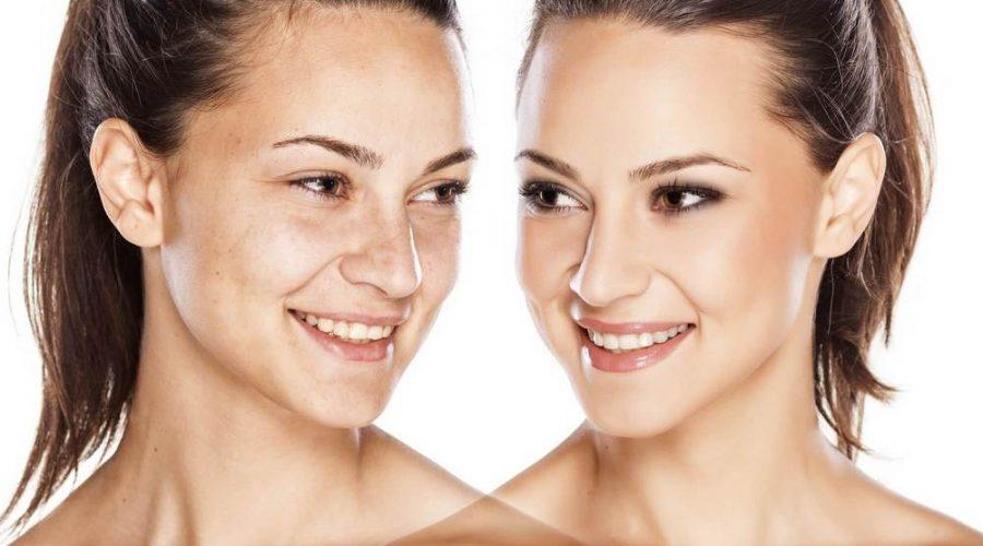 vieillissement rides supoerficielles visage femme