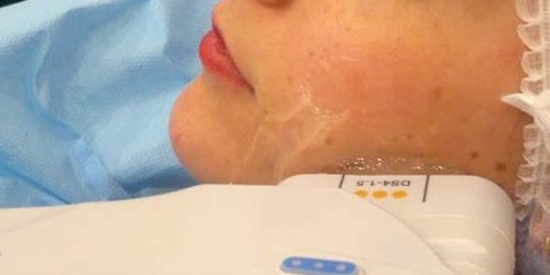 ulthera relahcement ovale visage peau flasque ultrasons dr sylvie tiano medecin esthetique